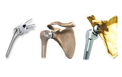 Amelioration Protheses Pour Fracture