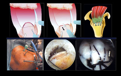 Implants Reparation Tendons Epaule Coiffe Rotateurs